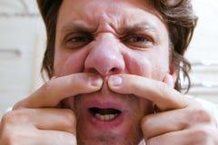 De jonge mens bekijkt spiegel en samendrukking uit een pukkel onder zijn neus Het gezicht van de close-up stock foto's