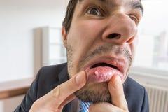 De jonge mens kijkt op zweer of blaar in zijn mond in spiegel stock afbeelding