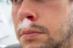 De jonge mens met het aftappen van neus heeft watten in neusgat stock foto