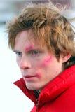 De jonge mens met weidt op een gezicht Stock Fotografie