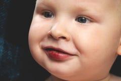 De jongen heeft een gebroken wond op de lippen stock foto's