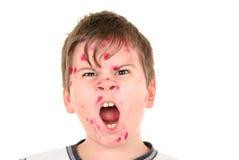 De jongen is ziek met waterpokken stock fotografie