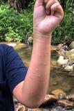 de jongenshand krijgt allergie van mug of installatie stock afbeelding