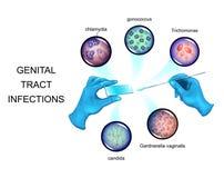 De kausativa medlen av sexually - överförda infektioner stock illustrationer