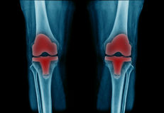 De knie van het röntgenstraalbeeld royalty-vrije stock fotografie