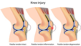 De knieanatomie van de verbindingsdraad Stock Foto
