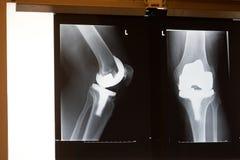 De knievervanging van de röntgenstraal Stock Foto