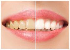 De kvinnliga tänderna före och efter som gör vit royaltyfri bild