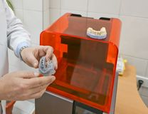 De lagere die kaak van een mens, op een 3d printer van een photopolymermateriaal wordt gecreeerd Stereolithography 3D printer, te Royalty-vrije Stock Fotografie