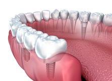 De lagere tanden en transparante tandimplant geven op wit geïsoleerd terug Stock Afbeelding