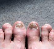 De lelijke mannelijke die voeten en de tenen door teen worden beïnvloed nagelen paddestoel en arhtritic hammertoes royalty-vrije stock foto