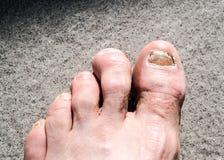 De lelijke mannelijke die voeten en de tenen door teen worden beïnvloed nagelen paddestoel en arhtritic hammertoes stock foto's