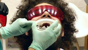De lengte van een persoon die op tanden worden voorbereid die bij een tandarts witten, de tandarts zet hem een mondsteun stock video