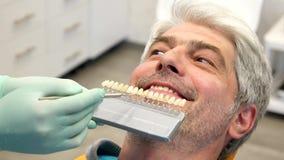 De lengte van een tandarts die jong controleren bemant schaduw van tandkleur stock videobeelden