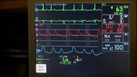 De levensteken van de patiënt stock video
