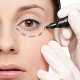 De lijnen van de correctie op vrouwengezicht, vóór chirurgie royalty-vrije stock foto's