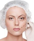 De lijnen van de correctie op vrouwengezicht, vóór chirurgie stock foto's
