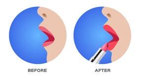 De lippenstift is op lippenhuid van toepassing Stock Foto's