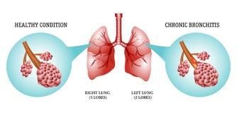 De longen, de ziekte is bronchitis Stock Foto
