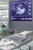 De machine van de echo, ultrasone klankmachine. foto. Stock Fotografie