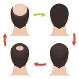 De mannelijke geplaatste stadia van het haarverlies Stock Foto