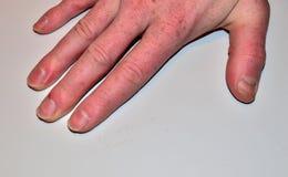 De mannelijke spijkersziekte, vingernagelgebrek van voedingsmiddelen en maakt geen spijker niet vormen en niet geven stock foto