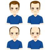 De mannelijke Stadia van het Haarverlies Stock Afbeeldingen