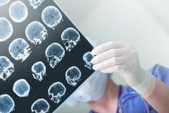 De medische deskundigen bestudeerden de EEGvoorwaarde van de patiënt Stock Foto's
