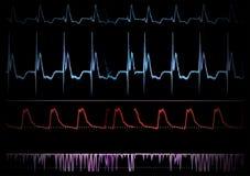 De medische monitor van het scherm. Royalty-vrije Stock Foto's