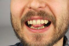 De mens met een baard bijt het uiteinde van de tong met zijn tanden Royalty-vrije Stock Afbeeldingen