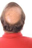 De mens van Balding stock foto's