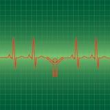 De mens van het electrocardiogram Stock Fotografie
