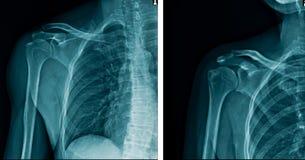 De menselijke schouder van het röntgenstraalbeeld stock foto