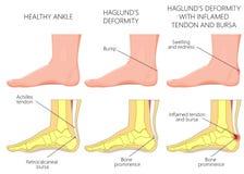 De misvorming van Haglund vector illustratie