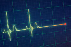 De monitor van ECG/van het electrocardiogram Royalty-vrije Stock Fotografie