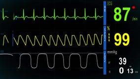 De monitor van het electrocardiogramhart stock videobeelden