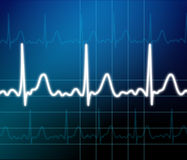 De monitor van het hart Stock Illustratie