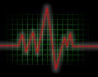 De Monitor van het hart Royalty-vrije Stock Afbeeldingen