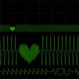 De Monitor van het hart Stock Foto's