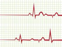 De monitor van het hart Royalty-vrije Stock Foto's