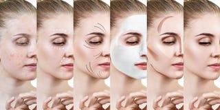 De mooie vrouw verbetert stap voor stap haar huidvoorwaarde Stock Afbeelding