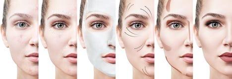 De mooie vrouw verbetert stap voor stap haar huidvoorwaarde Stock Foto's