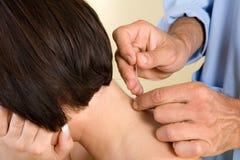De naalden van de acupunctuur op rug van een jonge vrouw Stock Afbeeldingen