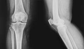 De normale knie van de röntgenstraal stock afbeeldingen