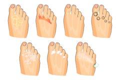De olika skadorna av foten svamp bränning, vårtor som svettas såväl som tvål, lotion och sprej Arkivbilder