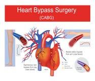 De omleidingschirurgie van het hart stock illustratie