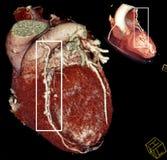 De omleidingschirurgie van het hart. Multy-vlak CT   Royalty-vrije Stock Afbeelding