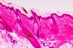 De onderwijsanatomie en de fysiologie van Menselijke scalp tonen van haar folticles onder microscopisch royalty-vrije stock afbeelding