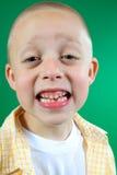 De ontbrekende tand van het jonge geitje stock fotografie