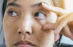 De ooglidlaag, Aders op rode oog Aziatische vrouw, veroorzaakt het gebruik van ogen en niet genoeg rust royalty-vrije stock fotografie